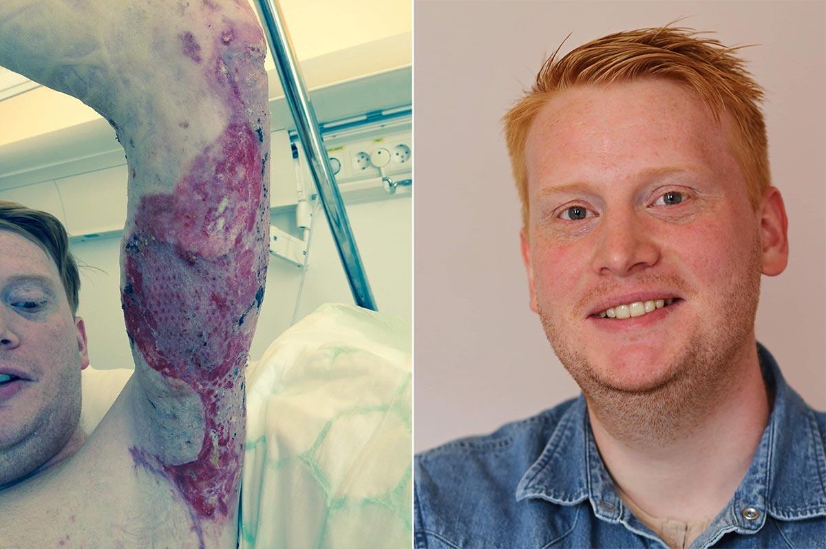 Fredrik Holm - portrett og ødelagt arm